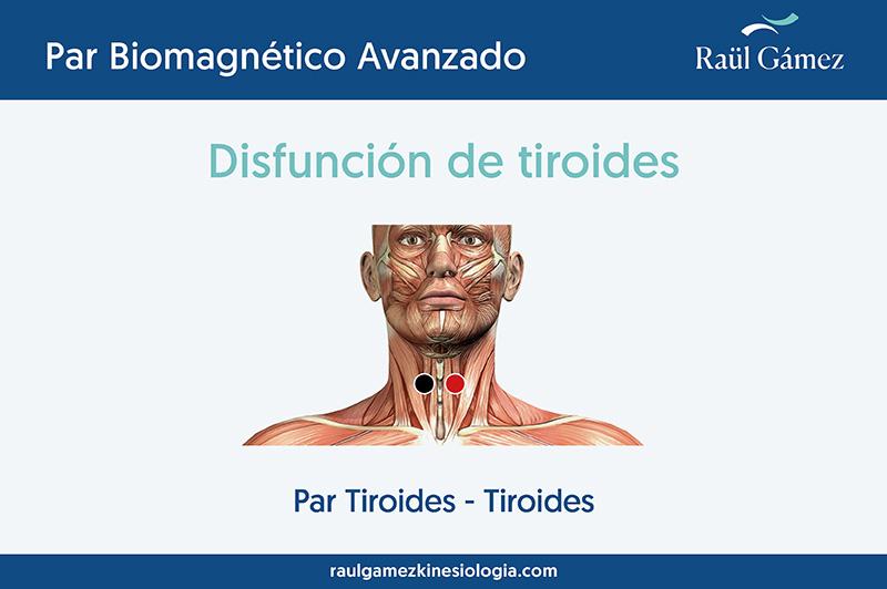 Par tiroides